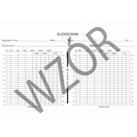 Audiogram / wynik badania audiomtrycznego